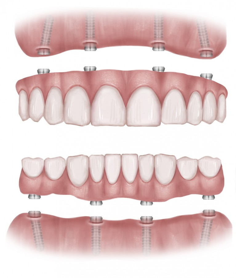 all on 4 dental implants in Commerce